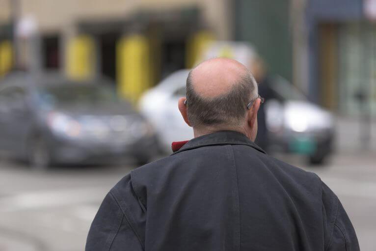 Typisch erblicher Haarausfall beim Mann: ausgeprägte Glatze mit Haarkranz.